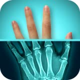 x ray app - Amazing X-Ray