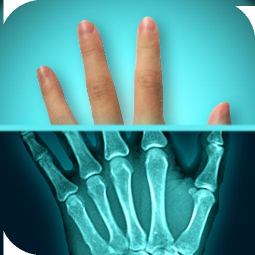 Amazing X-Ray - X App Ray
