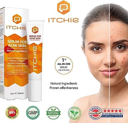 ITCHIE Sérum para la piel con acné - Resultados 100% Comprobados - Tratamiento del Acné Todo en Uno - Calma la Inflamación - Reduce el Enrojecimiento, las Manchas y las Espinillas - Detiene el picor