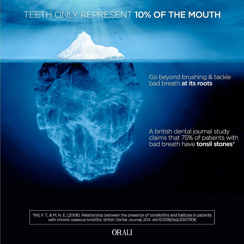 Kit de extracción de tonsilolitos o amigdalinos de 3 herramientas: Tonsil Pick, Raspador de lengua de Cobre, Jeringa de 12 ml de punta curvada.