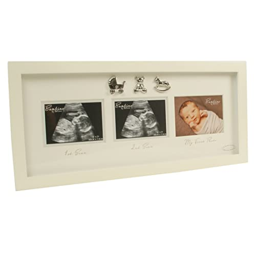 Baby Scan Photo Frames Amazon