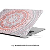 iCasso Macbook Air 11 Inch Case Rubber Coated
