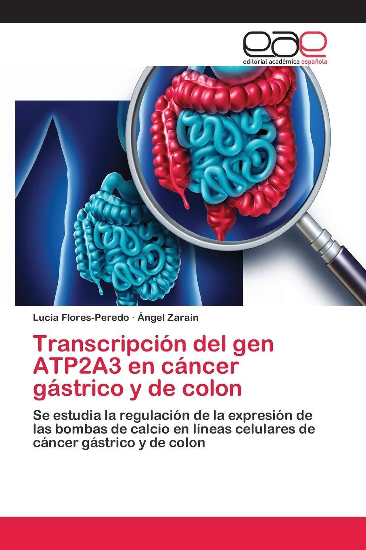 cancer epitelial de colon