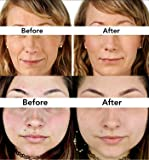 Skincareguys Stretch Marks & Acne Scars and Hair