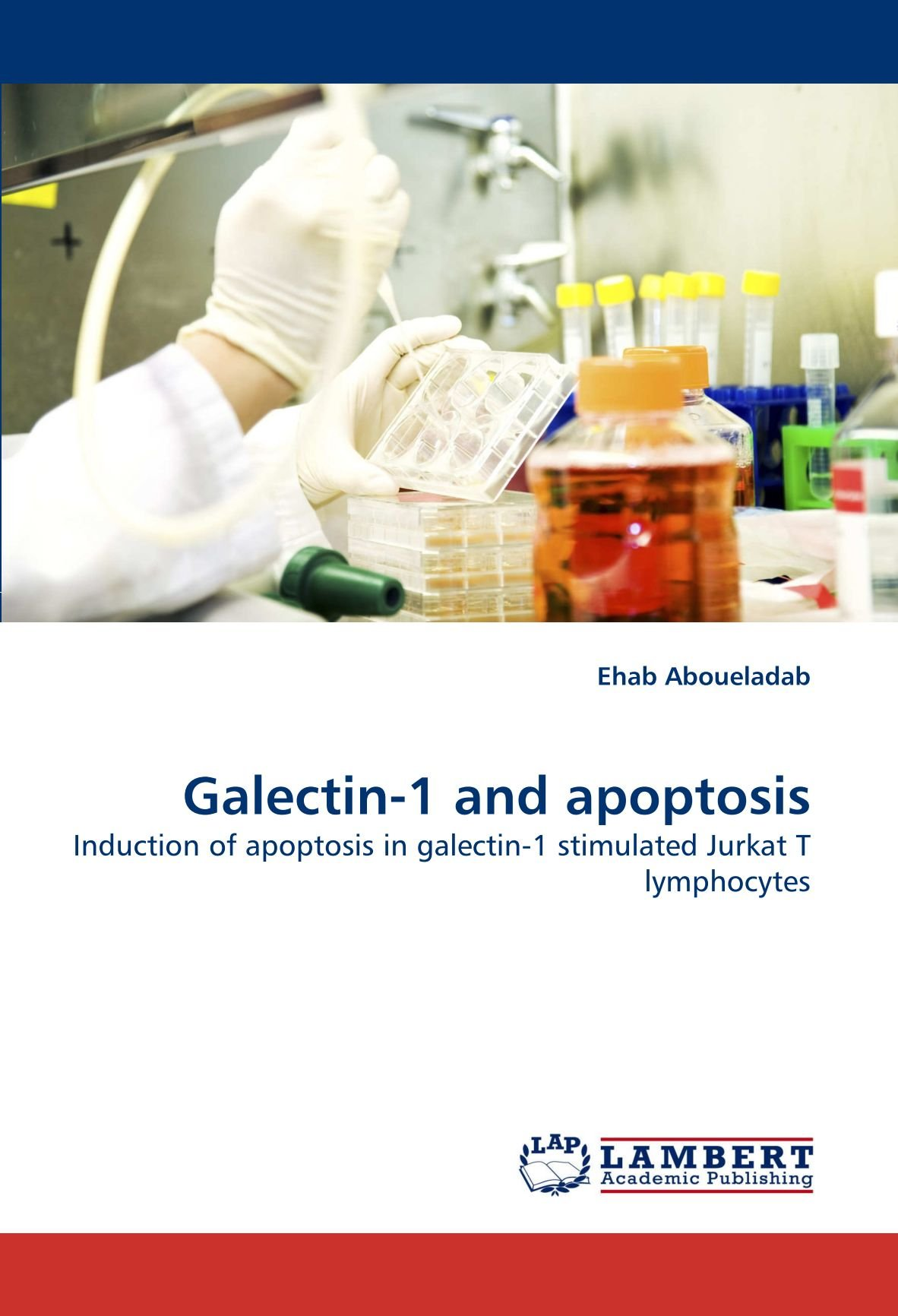7add9900d664 Galectin-1 and apoptosis  Induction of apoptosis in galectin-1 stimulated  Jurkat T lymphocytes Paperback – May 7