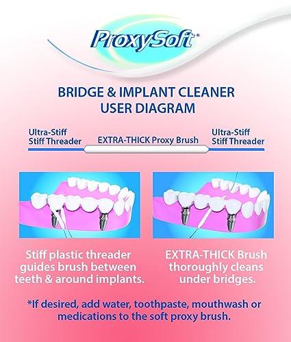 Thornton - Limpiador para Puentes e Implantes: Amazon.es: Salud y cuidado personal