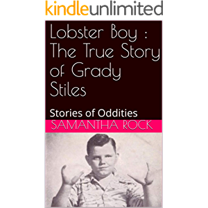 Lobster Boy : The True Story of Grady Stiles: Stories of Oddities