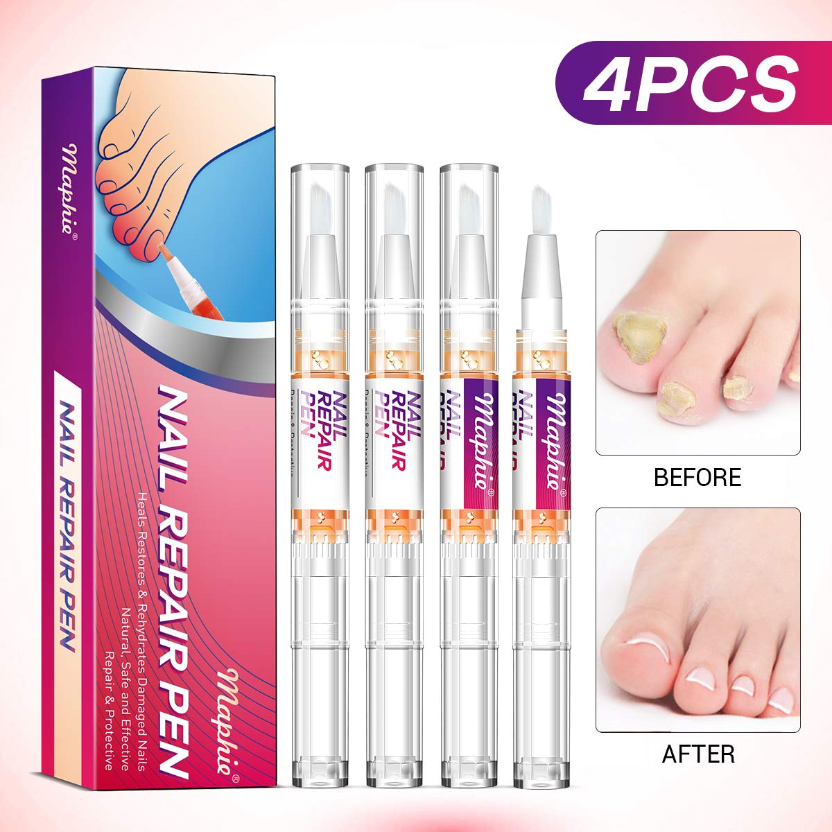 Nail Repair Pen,Toenail Treatment, Toenail Care,Solution Repairs & Protects from Discoloration, Brittle and Cracked Nails 4 pcs by MAPHIE