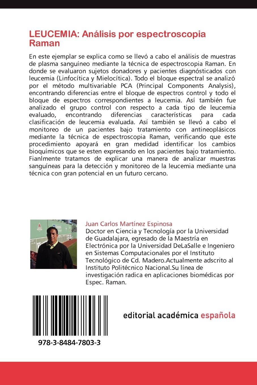 Leucemia: Analisis Por Espectroscopia Raman: Amazon.es: Juan Carlos Mart Nez Espinosa, Jos Luis Gonz Lez, Pascual Palomares: Libros