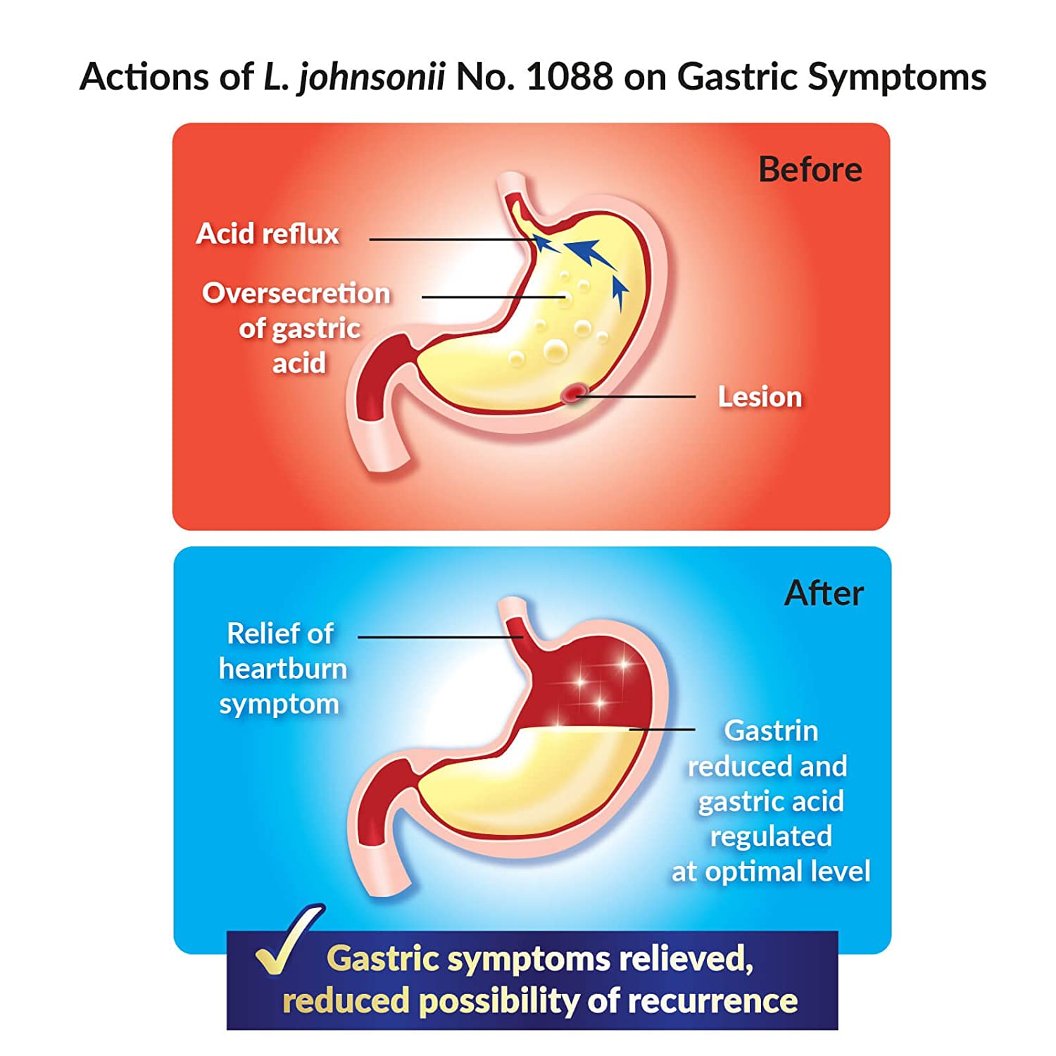 Amazon.com: GASTRICELL - Targets The Root Cause of Recurring gastric Problems, Natural Defence Against Gastric Distress: Health & Personal Care