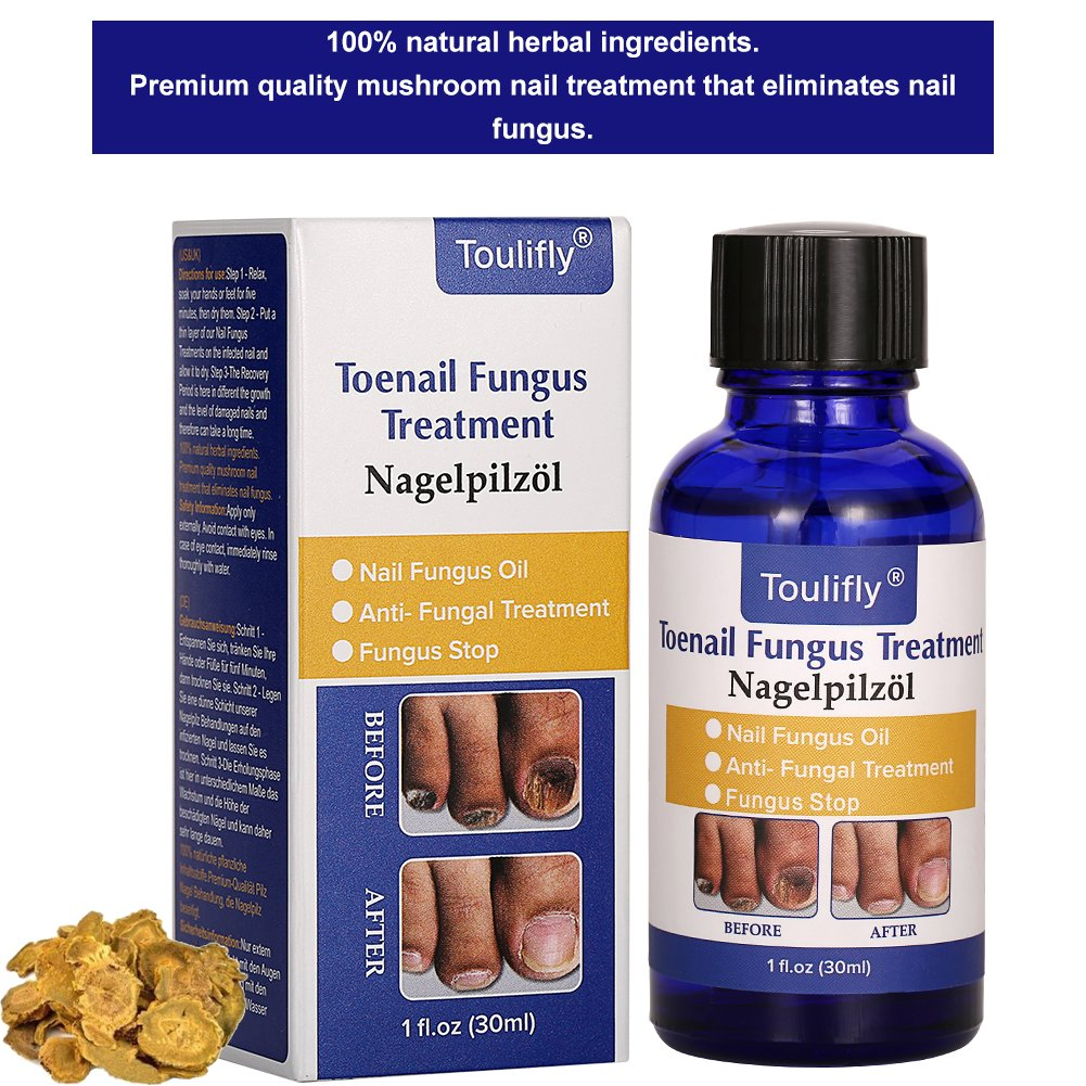 Amazon.com : Fungus Stop, Nail Fungus Treatment, Toenail Fungus Nail ...
