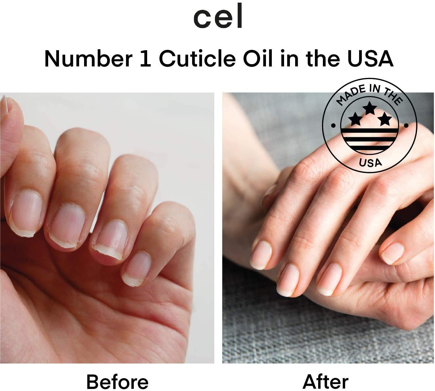 Cel MD Cuticle Oil Pen Nail Strengthener Repair Serum – Nail Repair For Damaged Nails – Helps Repair & Nourish Cracked Nails and Rigid Dry Cuticles - Set of 2: Beauty