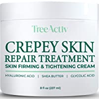 TreeActiv Crepey Skin Repair Treatment   Hyaluronic Acid Skin Firming & Tightening Lotion for Sagging Neck, Arms, Chest, & Legs   Anti-Aging & Anti-Wrinkle Cream & Stretch Marks Remover   500+ Uses