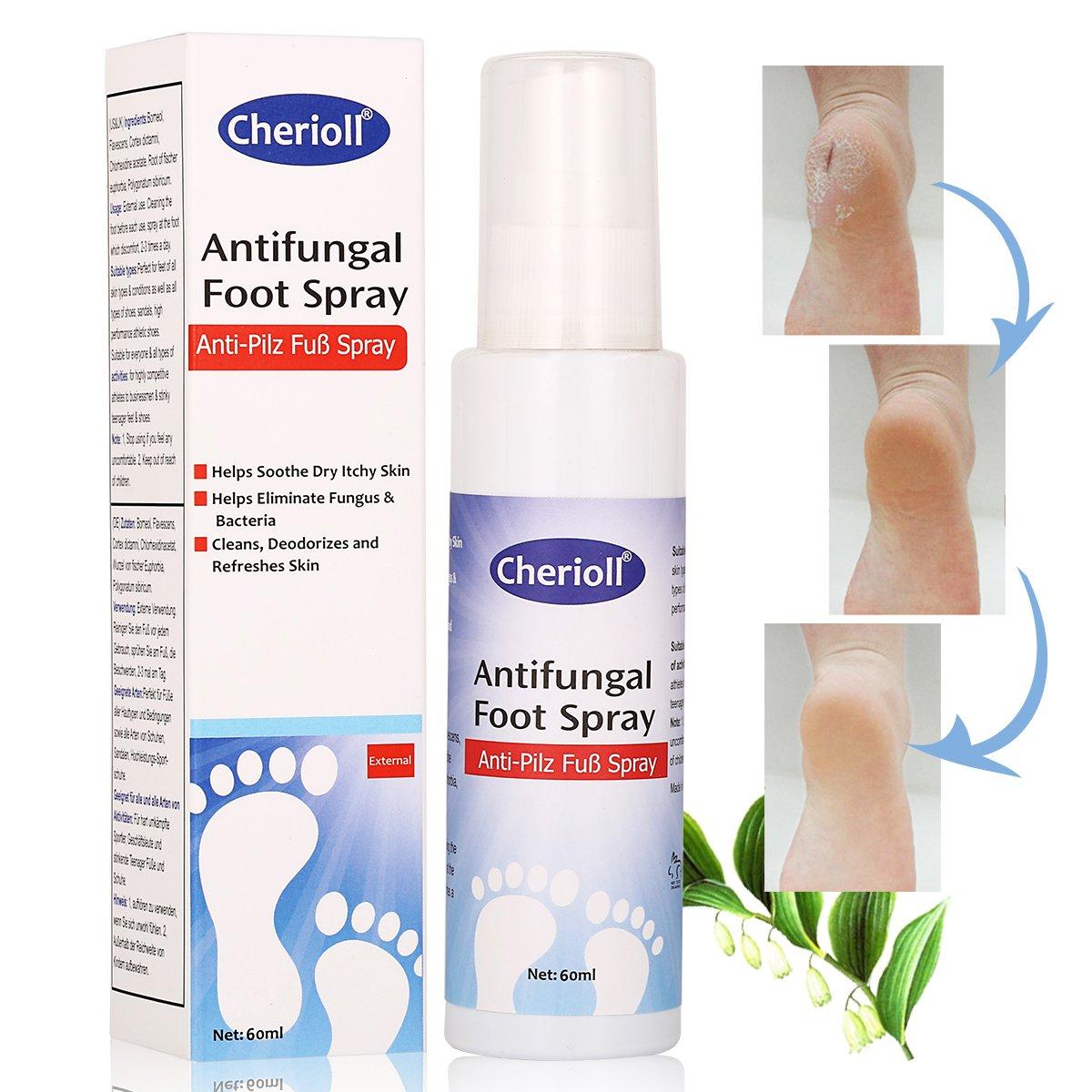 Spray per la cura efficace dei funghi dei piedi, anti-odore, cura e previene le infezioni da fungo Toulifly