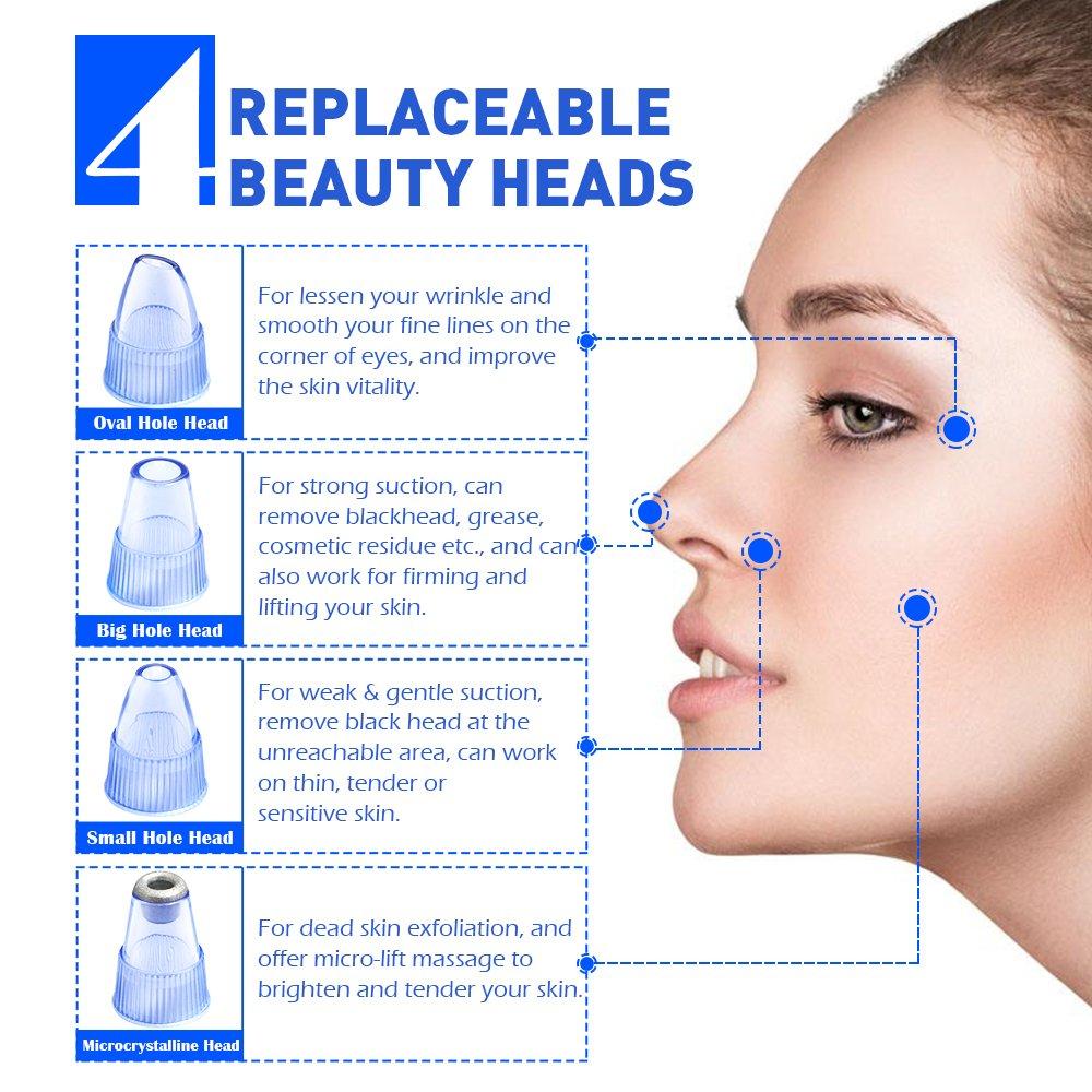 Blackhead Remover Vacuum Comedo Suction Tool 2018 Upgraded Facial Pore Cleaner Electric Exfoliator
