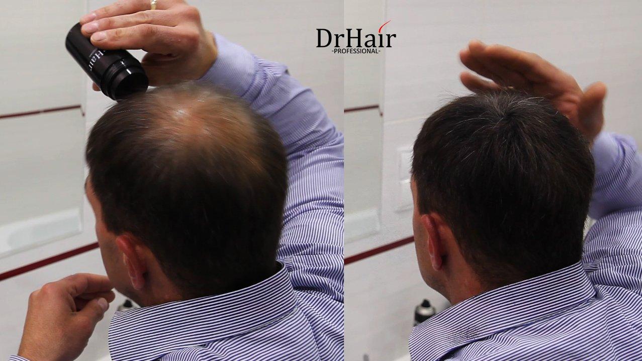Dr Hair Fibers, Fibras de pelo, anti-caída del cabello, Queratina de pelo en pluma, Rubio Oscuro, 30g: Amazon.es: Belleza