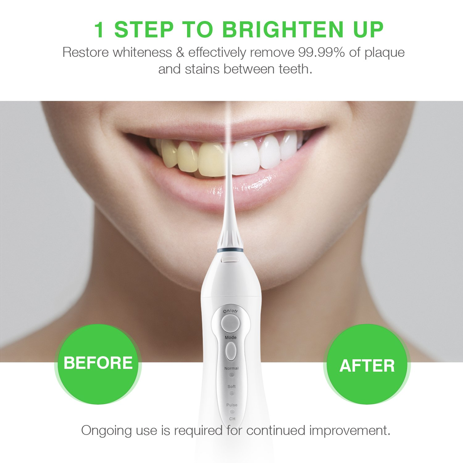 Water Flosser Professional Cordless Dental Oral Irrigator - Portable and Rechargeable IPX7 Waterproof 3 Modes Water Flossing with 4 Jet Tips for Home and Travel,Braces & Bridges Care by Greenvida (Image #2)