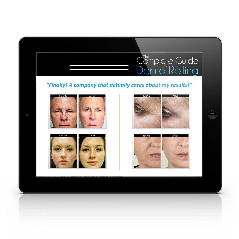 Uskincare Titanio Micro-ago Derma Roller 0.5mm+Istruzioni per l\'utente libero-Migliore Anti Invecchiamento Strumento-Il Trattamento di Rughe,Acne Cicatrici e Smagliature
