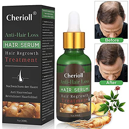 Hair Serum,anti pérdida de pelo,Sérum para crecimiento del cabello, suero para