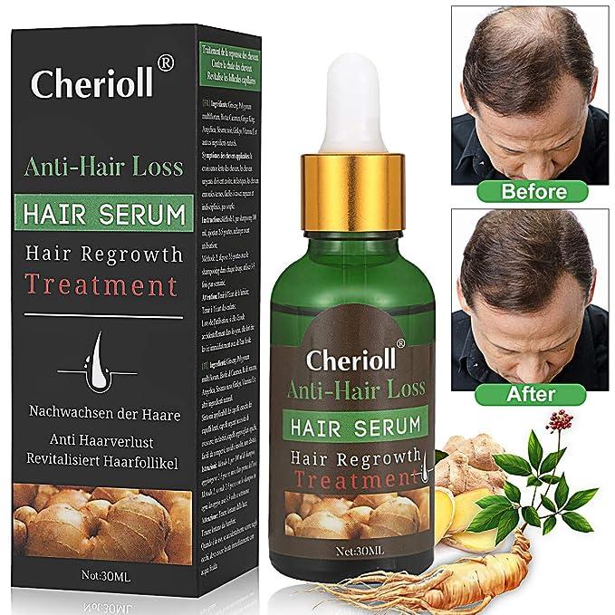 Hair Serum,anti pérdida de pelo,Sérum para crecimiento del cabello, suero para el pelo: Amazon.es: Belleza