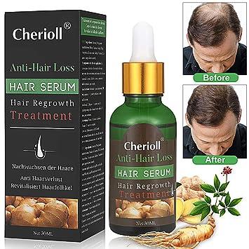 185765957c4 Hair Serum,Anti Hair Loss,Hair Growth Serum, Natural Herbal essence Anti  Hair
