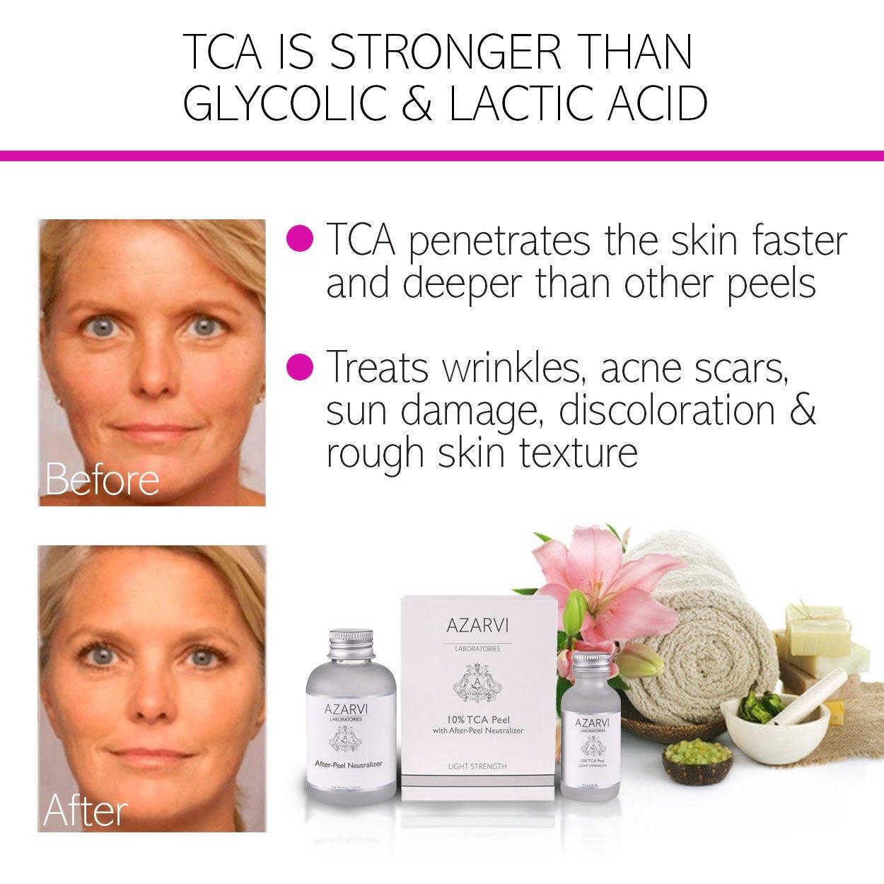 Amazon.com: 10% TCA Peel Including After Peel Neutralizer. Best for  Wrinkles, Acne, Smoker's Skin. Mild-Medium Strength. Contains Retinol &  Vitamin C: ...