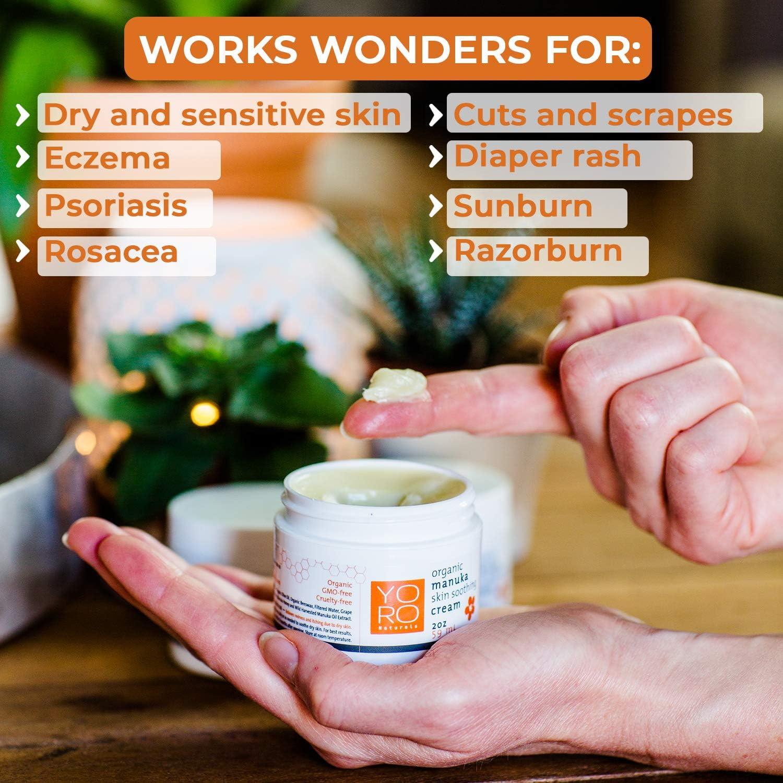 YoRo Naturals, Organic Manuka Skin Soothing Creamy Balm, Relief from Eczema, Psoriasis, Diaper Rash, Sunburns, Cuts & Scrapes (2 OZ): Health & Personal Care