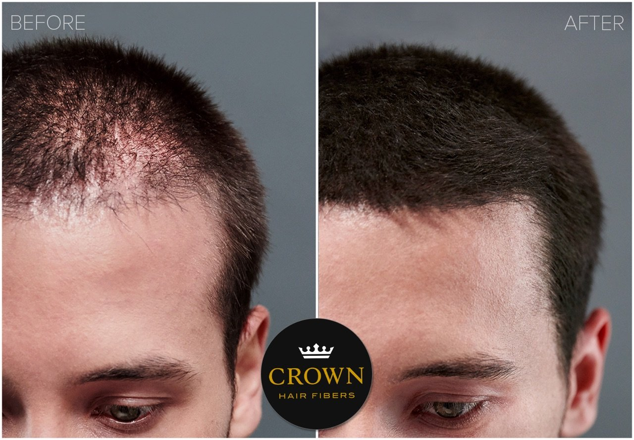 Amazon.com: CROWN Hair Fibers - Best Keratin Hair Fibers Instantly Thickens Thinning Hair for Men and Women - Natural Hair Loss Concealer 0.87oz - Medium ...