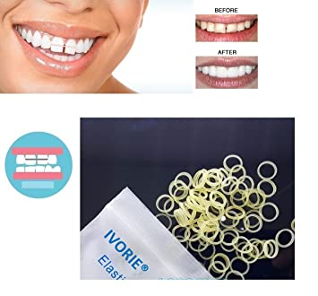 IVORIE Dental Orthodontic Rubber Bands Elastics Latex Braces Teeth Gap  100pcs (3/16