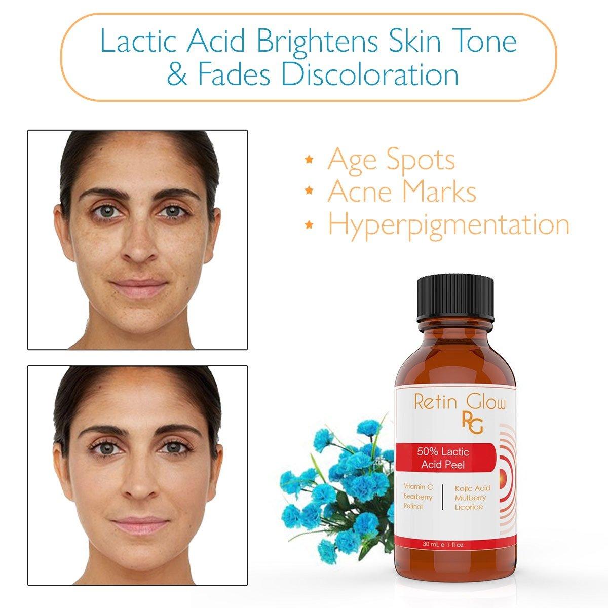 lactic acid peel