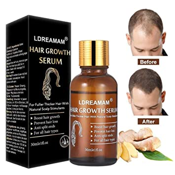 Home remedies for hair loss and regrowth