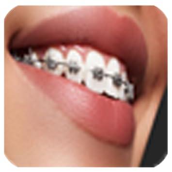 braces bretelles
