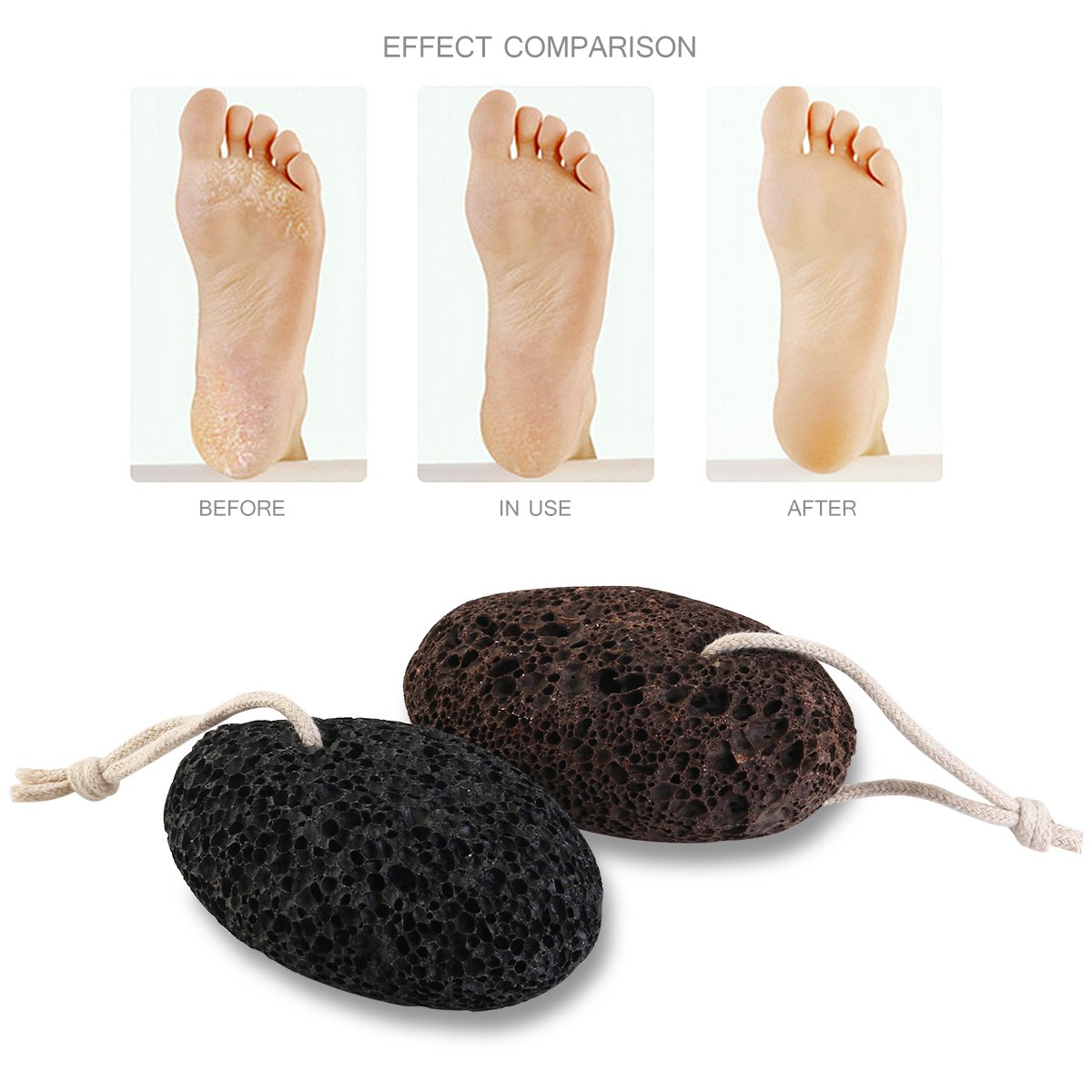 Pumice Stone Foot Scrubber Callus Remover, Pedicure and Exfoliation Tool Pack of 2