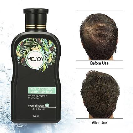 Champú anticaída de Luckyfine, estimula el crecimiento del cabello y evita la caída, anticaspa, 200 ml: Amazon.es: Belleza