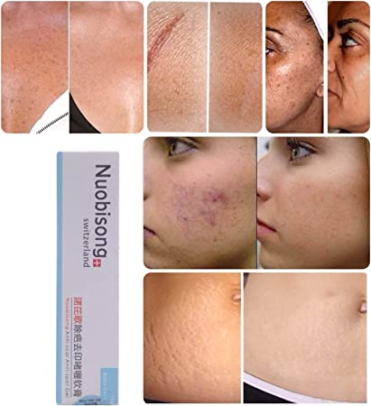 Scar Removal Cream Treatment Acne Scar Gel Stretch Marks