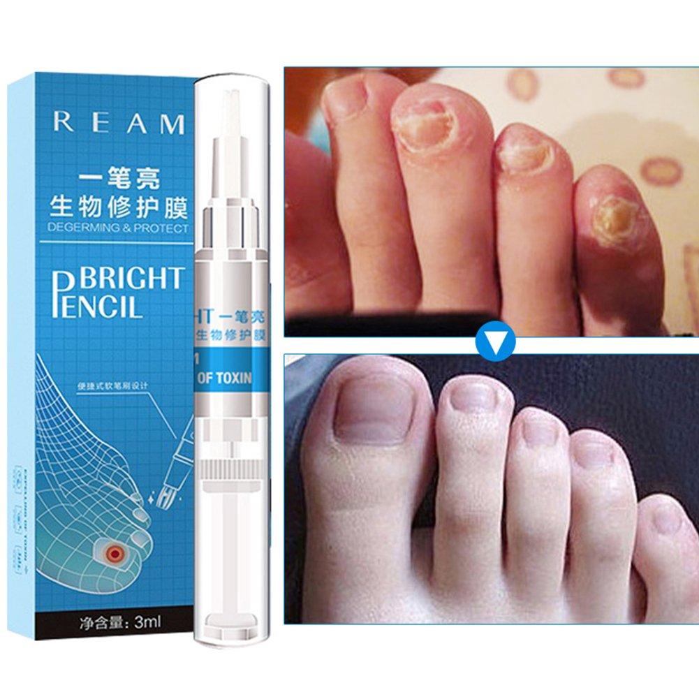 Nail Treatment Essence Pen, KISSION Anti Fungal Nail Repair Gel, Antibacterial Whitening Anti-Fungal Nail, Toenail/Toe Repair Solution Liquid