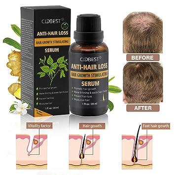 e8e15a98e3d Hair Growth Serum, Hair Treatment, Hair Serum, Hair Loss Treatment, Natural  Hair
