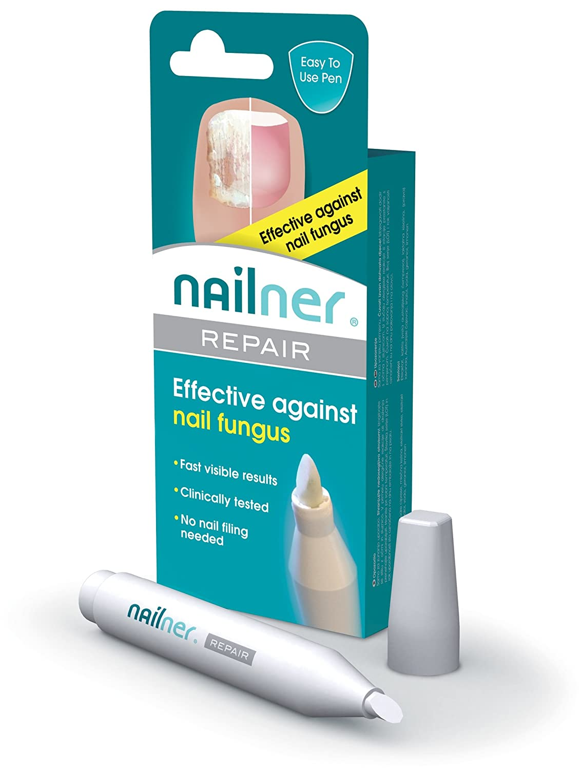 Nailner Repair Pen for Fungal Nail Infection - 4ml: Amazon.co.uk ...