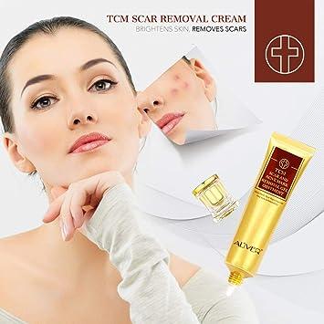 Scar Removal Cream For Old Scars- Stretch Mark Removal Cream for Men & Women- Stretch Marks Relief and Burns Repair,Face Skin Repair Cream