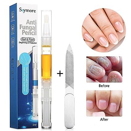Aceite de uñas, para tratamiento de uñas con hongos, para uñas de las manos
