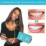 MayBeau Teeth Whitening Kit with 24X LED