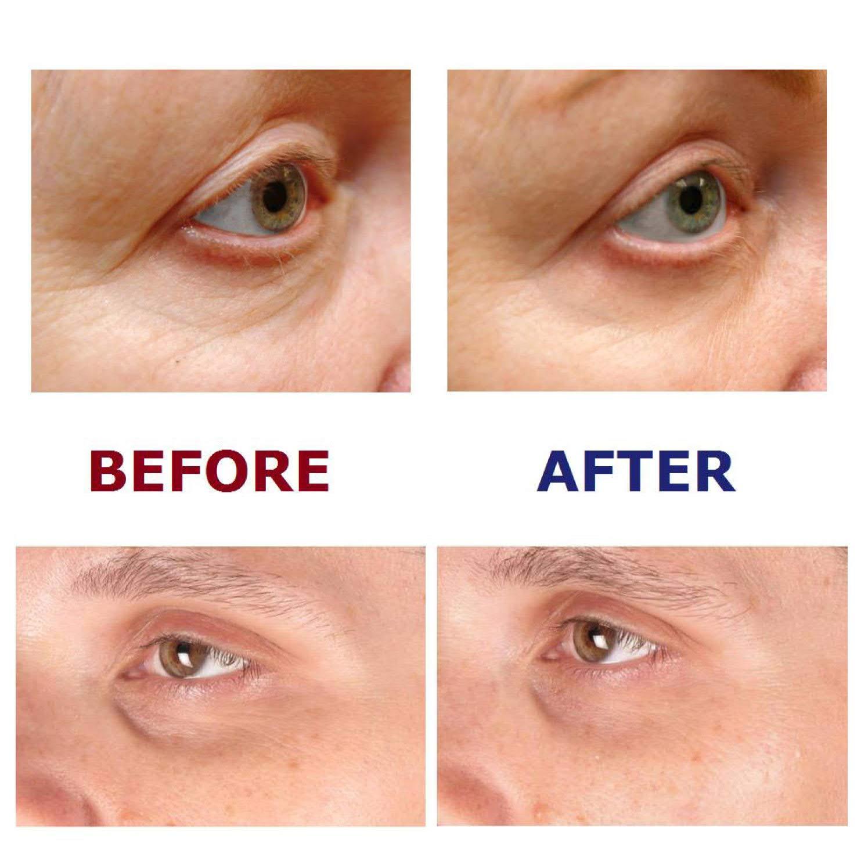 Amazon Com Under Eye Repair Cream All Trans Retinol Under Eye