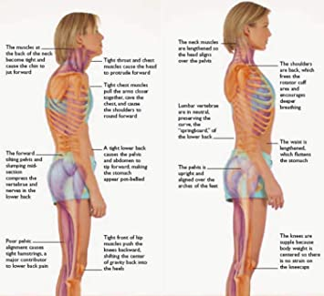 48377aadd3c87f Amazon.com  Posture Corrector for Children and Teenagers  Health ...