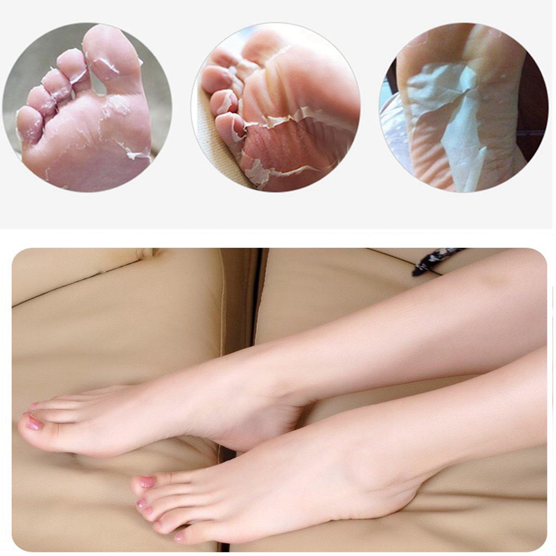 Amazon.com: Baby Foot Crema exfoliante para los pies &ndash ...