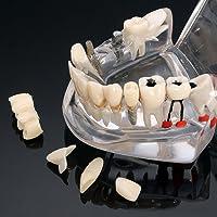 Modelo de dientes de enfermedad de implante dental con puente de restauración Modelo de ortodoncia de maloclusión para ciencia médica dental