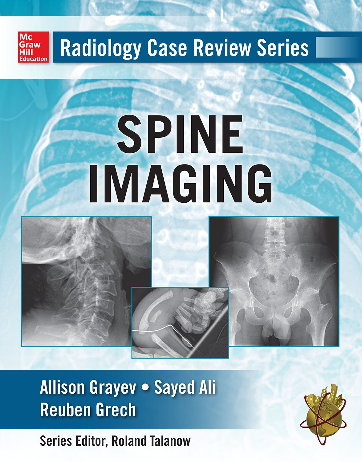 Radiology Case Review Series  Spine  English Edition