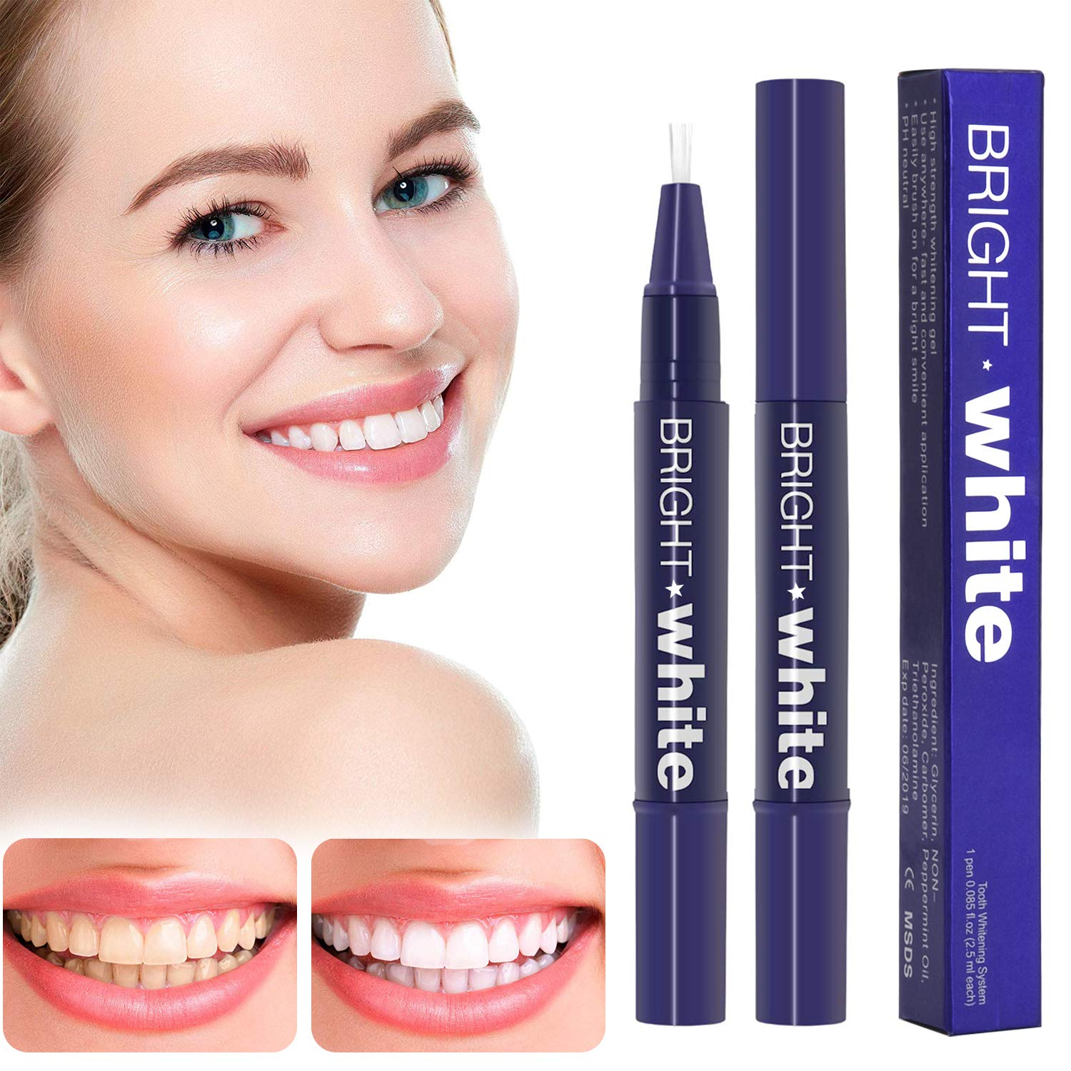 Teeth Whitening Pen (2 Pack), Safe 35% Carbamide Peroxide Gel, 20+ Uses,  Effective, Painless, No