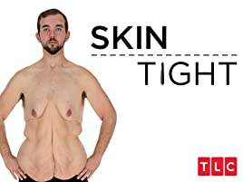 get rid of excess skin weight loss