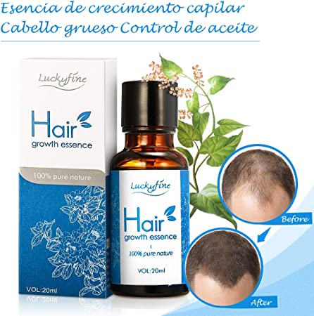 Aceite para Crecimiento del Cabello, Pelo Crecimiento Esencia, Hair Growth Essence 100% Pure Nature, Estimula Cabello, Pérdida de Pelo Tratamiento para los hombres y mujeres: Amazon.es: Belleza