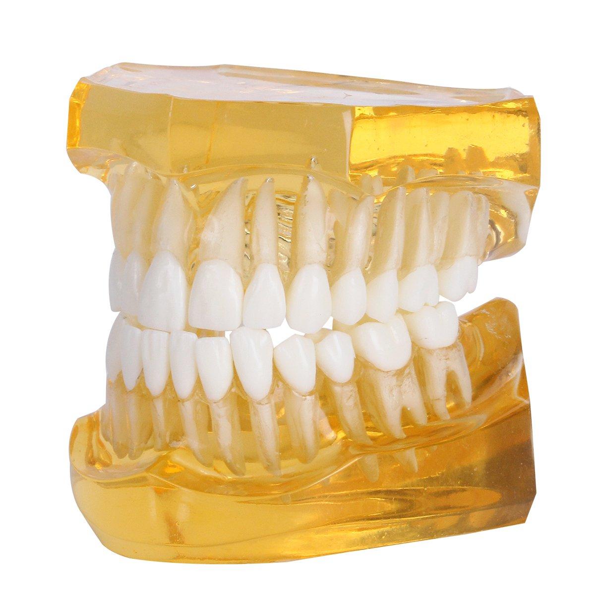 Amazon Azdent Dental Removable Teeth Model Adult Typodont